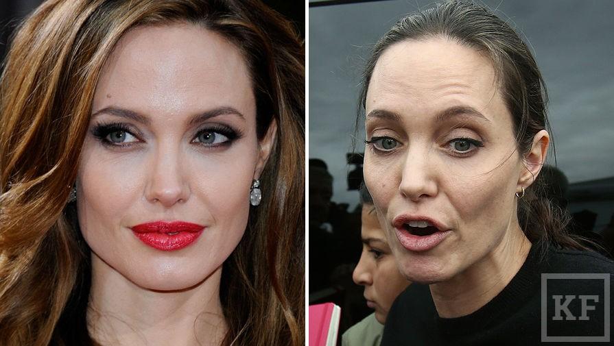Анджелина Джоли изменилась до неузнаваемости из-за рака