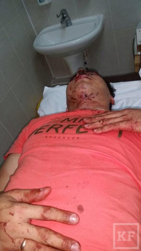 Активист движения «Молодая гвардия» в Татарстане, занимающийся борьбой с нелегальными казино, избит накануне рейда по игорным заведениям
