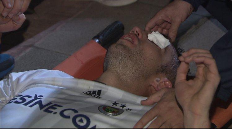Голландский футболист Робин ван Перси рискует ослепнуть
