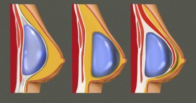 Импланты в грудь на всю жизнь