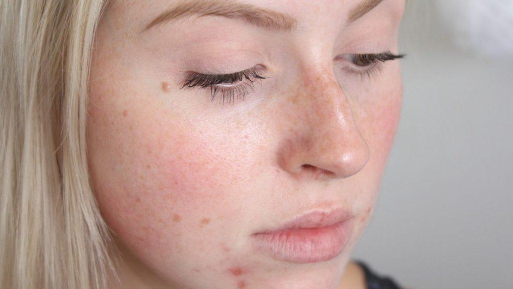 Ученые: Подростки спроблемной кожей дольше остаются молодыми