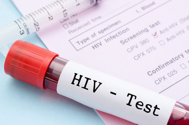 Казанцы смогут пройти бесплатное анонимное тестирование наВИЧ-инфекцию