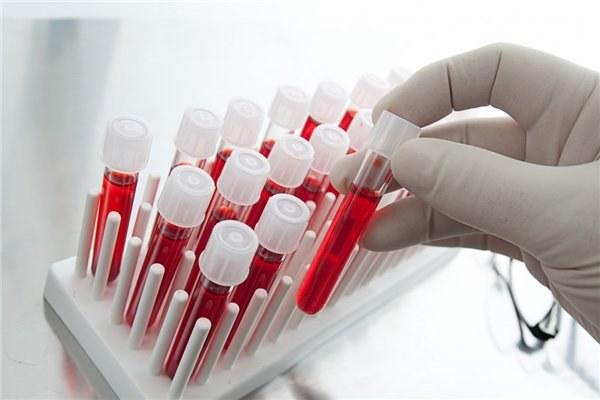 Самарская область получит 125 млн руб. налекарства отВИЧ