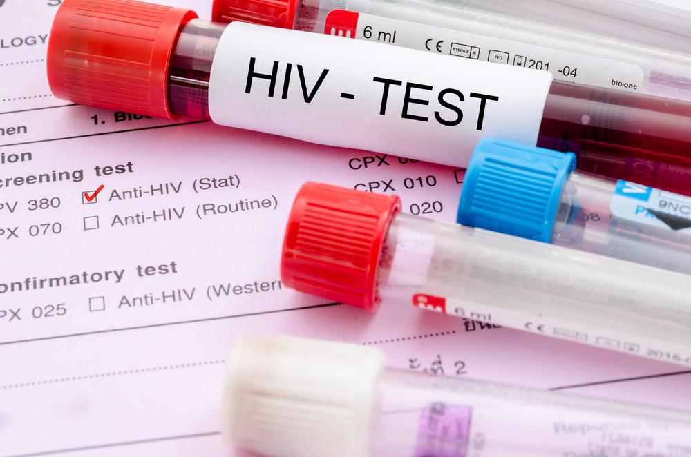 Эпидемия ВИЧ вНовосибирской области снизила темпы